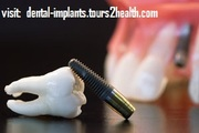 Affordable Dental Tooth Implants